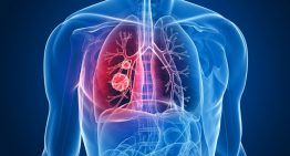 Mesothelioma cancer: The Essentials